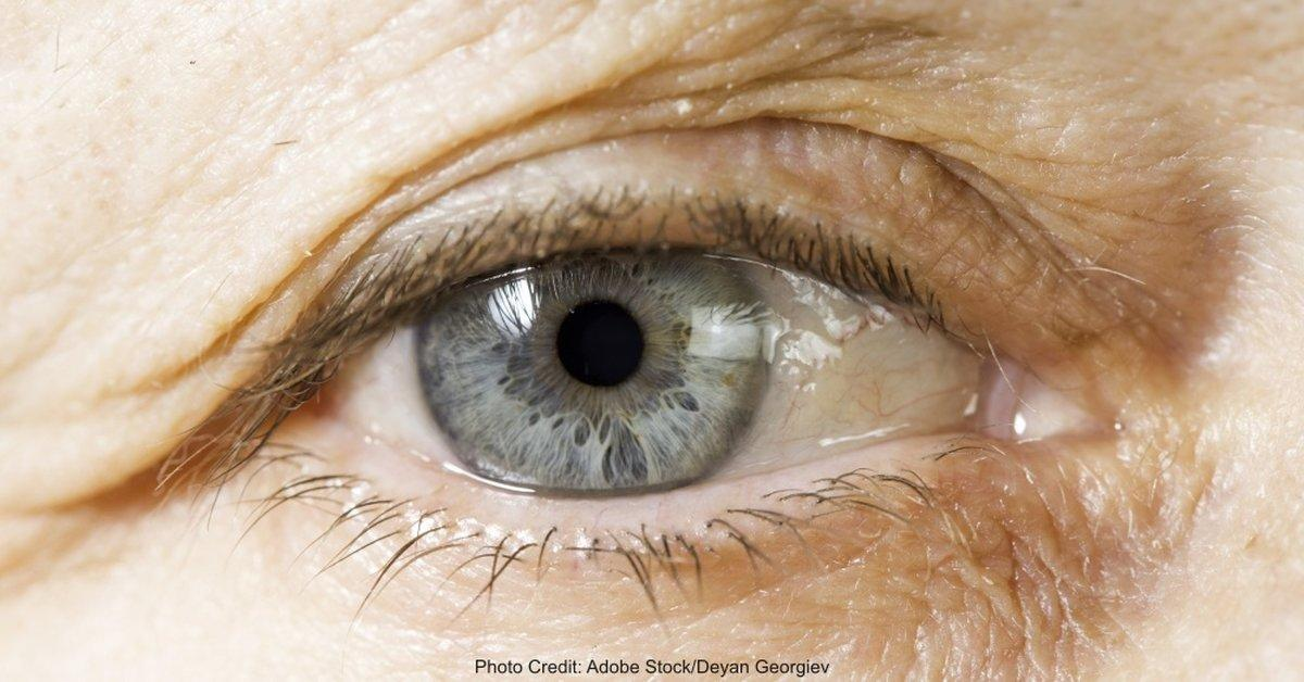 When Diabetes Symptoms Mask Themselves as Signs of Aging