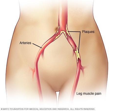 Diabetes Peripheral Vascular Disease Pathophysiology
