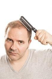 Receding Hairline, Diet And Insulin: The Surprising Hair Loss Link