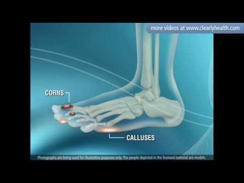 What Diabetes Does To The Foot?