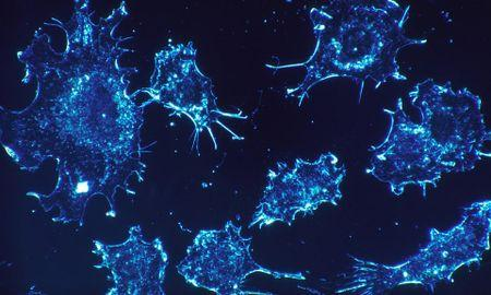 A Diabetes Drug Has Shut Down Cancer's Primary Way of Making Energy