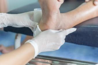 Diabetic Foot Ulcer: Treatment And Prevention
