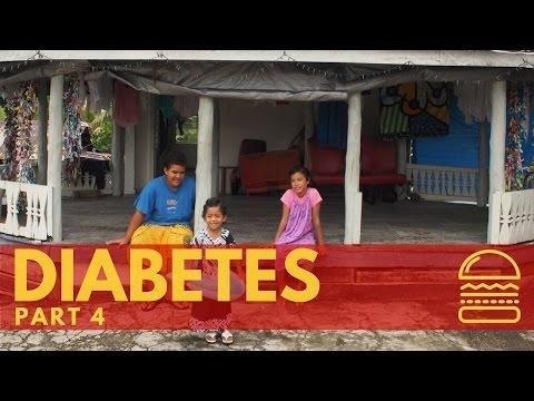 Diabetes Epidemic 2017