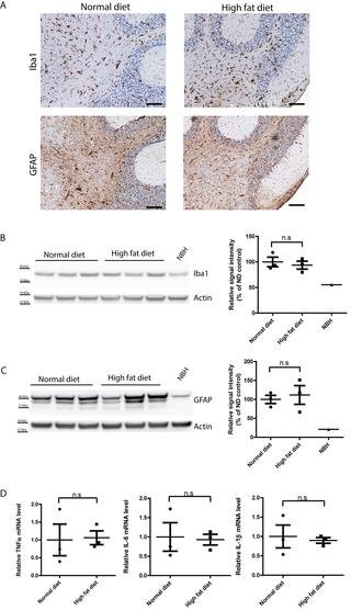 Unaltered Prion Pathogenesis In A Mouse Model Of High-fat Diet-induced Insulin Resistance