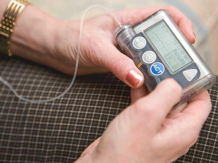 How Insulin Pump Works