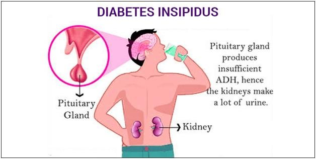 What Are The Symptoms Of Diabetes Insipidus?