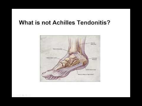 Achilles Tendonitis Diabetes