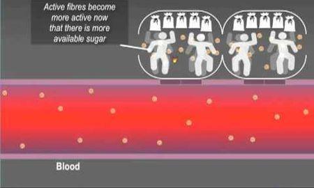 Is Diabetes A Metabolic Disease