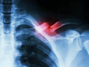 Diabetes Drug Rosiglitazone Can Increase Fracture Risk