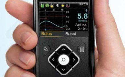 Insulin Pump Cost In India