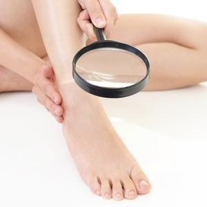 What Causes Foot Amputation In Diabetics?