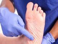 Type 2 Diabetes Feet