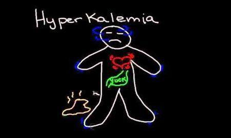 Does Ketoacidosis Cause Hyperkalemia