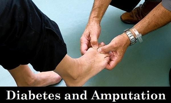 Diabetes Amputation: Its Causes, Symptoms & Risk Factors