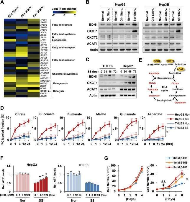 Hepatocellular Carcinoma Redirects To Ketolysis For Progression Under Nutrition Deprivation Stress