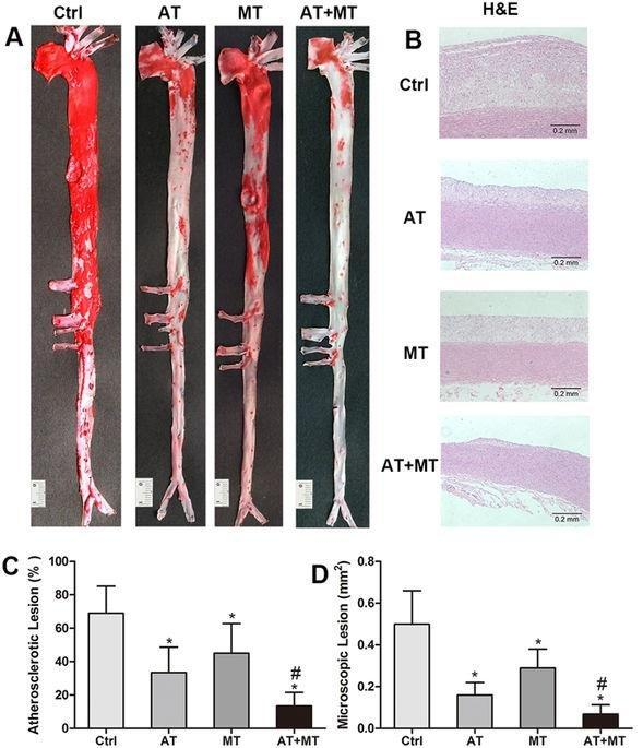 Combined Use Of Metformin And Atorvastatin Attenuates Atherosclerosis In Rabbits Fed A High-cholesterol Diet