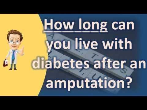 Survival Rate After Diabetic Amputation
