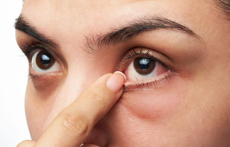 Does Diabetes Cause Dry Eyes?