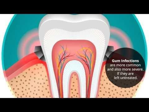 Diabetes And Dental Treatment