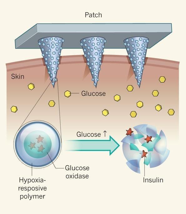 A Smart Insulin Patch | Nature