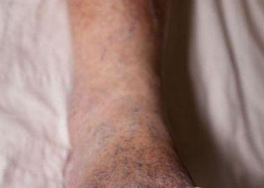 Type 2 Diabetes and Peripheral Neuropathy: To Walk or Not to Walk?